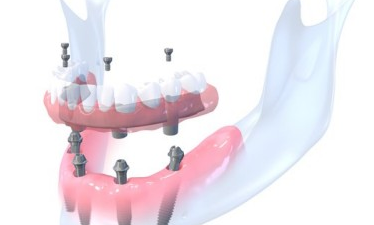 prothese dentaire transvissée