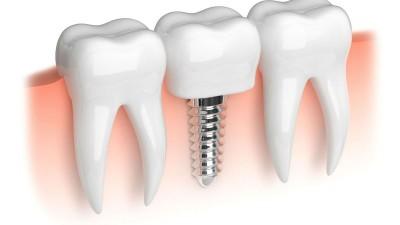 implant dentaire en Espagne
