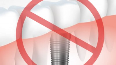 contre-indications implants dentaires