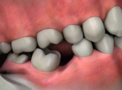 Remplacer une dent perdue avec un implant dentaire